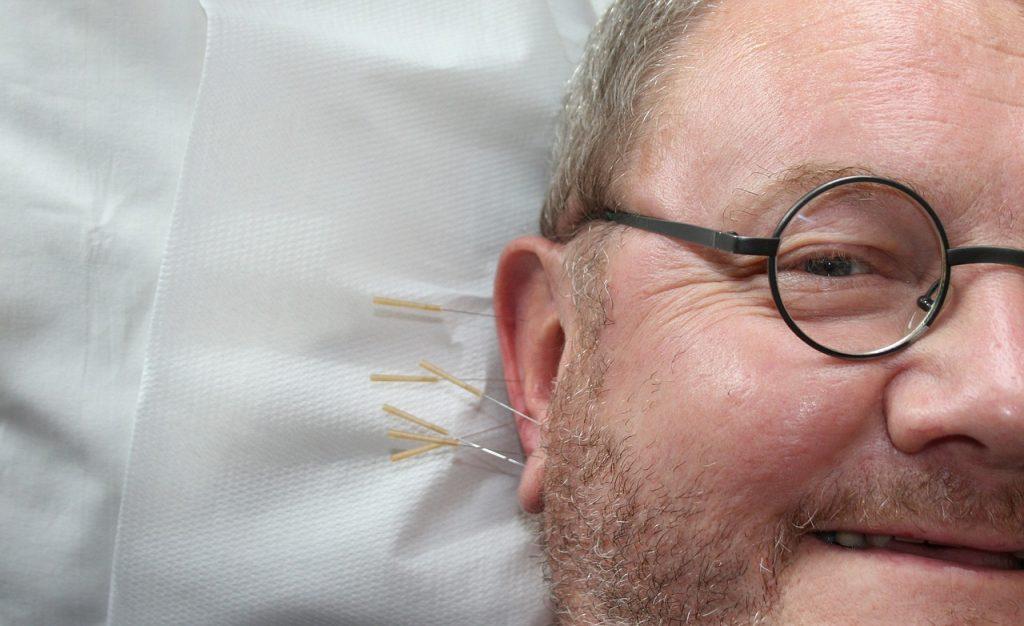Acupuncture de l'oreille