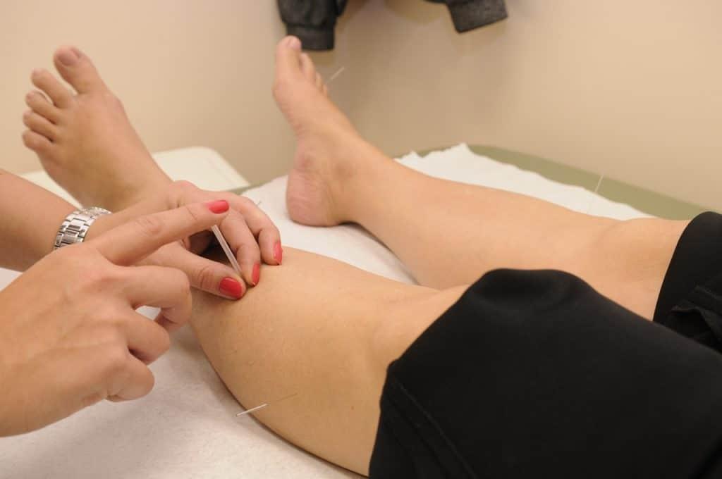 Acupuncture à la jambe