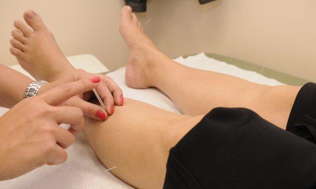 Acupuncture pour maigrir : notre guide, notre avis